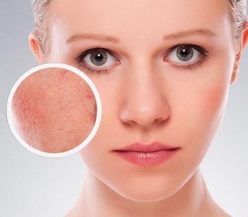 Tratament cuperoza femei