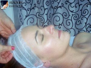 tratament facial weyergans 3